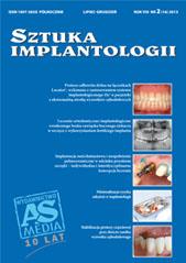 Sztuka Implantologii